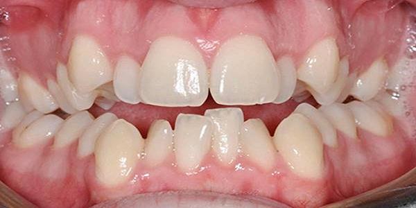 Răng xấu – Nguyên nhân và các cách khắc phục hiệu quả nhất - ảnh 5