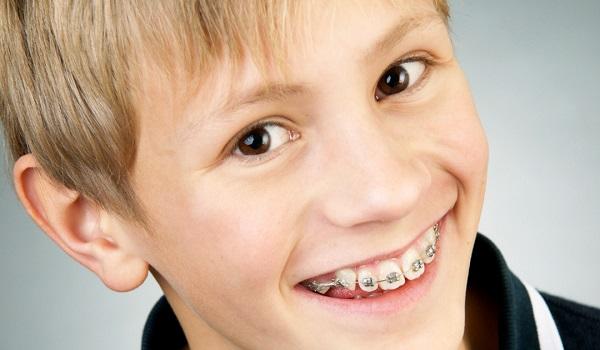 niềng răng có phải nhổ răng khôn