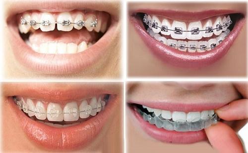 Niềng Răng Là Gì? Có Đau Không? Thời Gian Bao Lâu? Quy Trình Niềng Răng Như Thế Nào? - ảnh 1