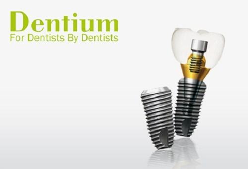 Cấy Implant Dentium Hàn Quốc Có Tốt Không? - ảnh 1