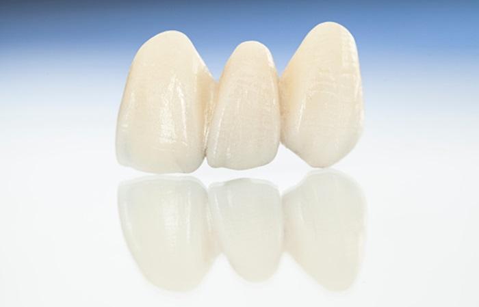 Răng sứ Nacera có tốt không? Giá bao nhiêu năm 2020? - ảnh 1