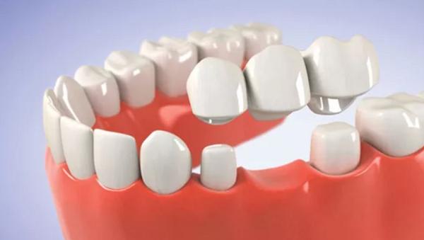 Tại Sao Mất Một Răng Phải Trồng 3 Răng Sứ? Nha Khoa Quốc Tế Á Châu? - ảnh 3