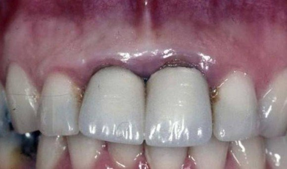 Bọc Răng Sứ Là Gì? Làm Răng Sứ Có Đau Không? Có Tốt Không? Quy Trình Bọc Sứ Như Thế Nào? - ảnh 5
