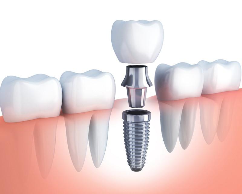 Tại Sao Mất Một Răng Phải Trồng 3 Răng Sứ? Nha Khoa Quốc Tế Á Châu? - ảnh 4