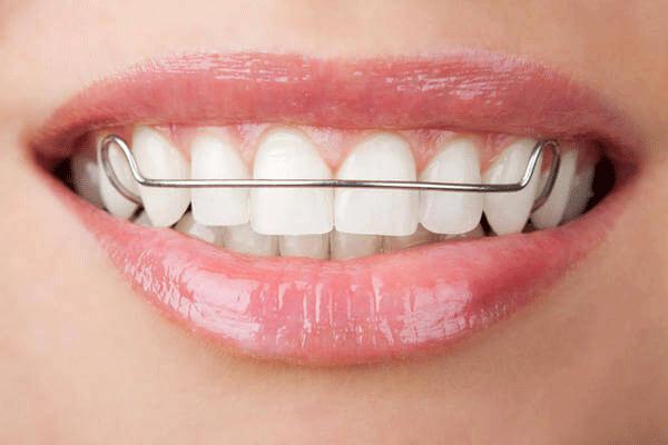 Niềng Răng Là Gì? Có Đau Không? Thời Gian Bao Lâu? Quy Trình Niềng Răng Như Thế Nào? - ảnh 5
