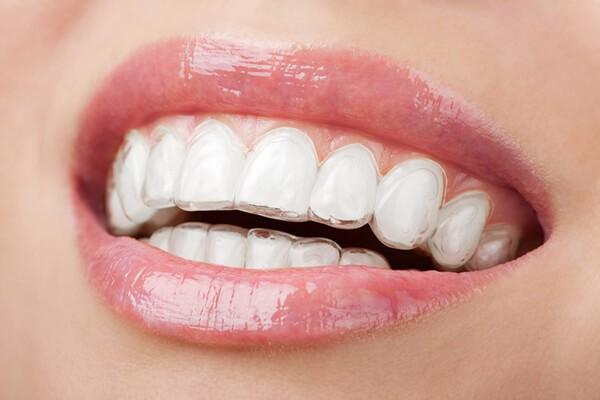 Niềng Răng Là Gì? Có Đau Không? Thời Gian Bao Lâu? Quy Trình Niềng Răng Như Thế Nào? - ảnh 6
