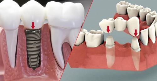 Tại Sao Mất Một Răng Phải Trồng 3 Răng Sứ? Nha Khoa Quốc Tế Á Châu? - ảnh 6