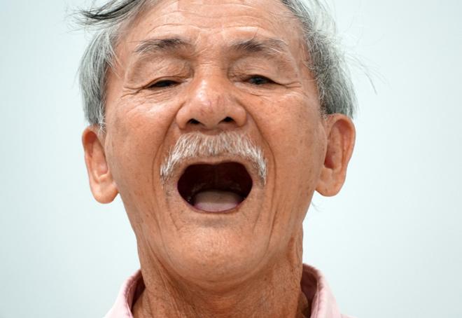 Độ Tuổi Nào Thích Hợp Để Cấy Implant? Cấy Implant Có Giới Hạn Độ Tuổi Không? - ảnh 5