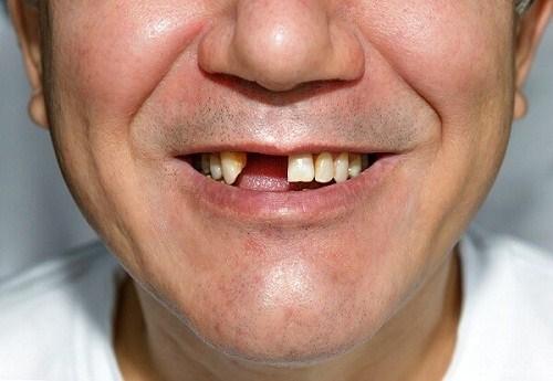 Độ Tuổi Nào Thích Hợp Để Cấy Implant? Cấy Implant Có Giới Hạn Độ Tuổi Không? - ảnh 7