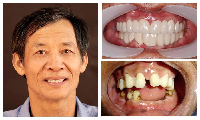 Trồng Implant Có Sử Dụng Được Vĩnh Viễn Không? Nha Khoa Quốc Tế Á Châu - ảnh 10
