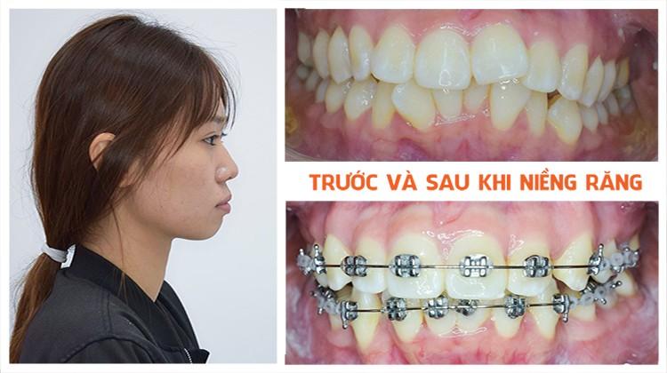 Cảm Giác Trong Quá Trình Niềng Răng Như Thế Nào? – Nha Khoa Quốc Tế Á Châu - ảnh 10