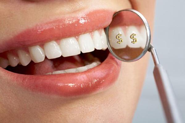 Răng Toàn Sứ Giá Bao Nhiêu? Răng Toàn Sứ Có Tốt Không? Các Loại Răng Toàn Sứ Phổ Biến - ảnh 9