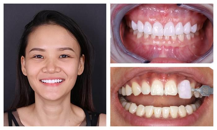 Bọc Răng Sứ Có Được Vĩnh Viễn Không? Nha Khoa Quốc Tế Á Châu - ảnh 1