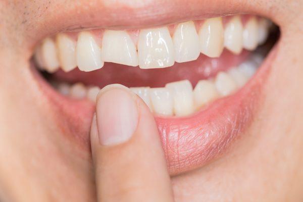 Răng Sứ Bị Vỡ Có Được Bảo Hành Không? – Nha Khoa Quốc Tế Á Châu - ảnh 1