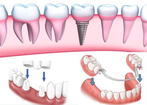 Top 3 Cách Trồng Răng Giả Tốt Nhất Hiện Nay – Nha Khoa Quốc Tế Á Châu - ảnh 1