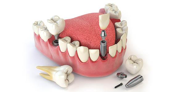 Quy Trình Cấy Ghép Implant Như Thế Nào? Nha Khoa Quốc Tế Á Châu - ảnh 1
