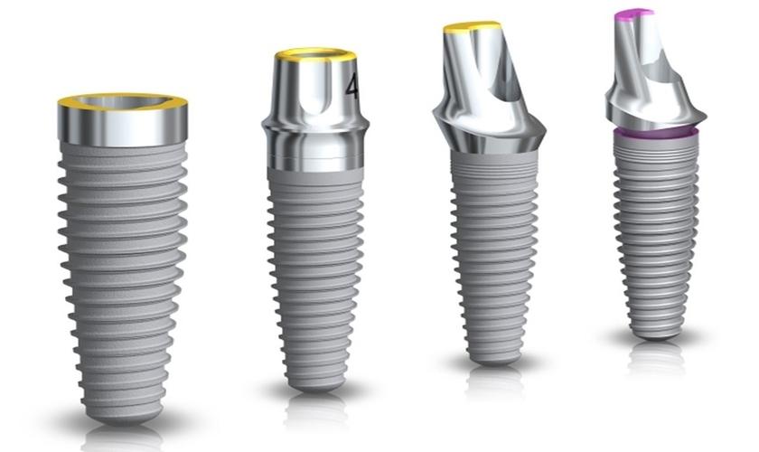 Các Loại Trụ Implant Phổ Biến Trên Thế Giới – Nha Khoa Quốc Tế Á Châu