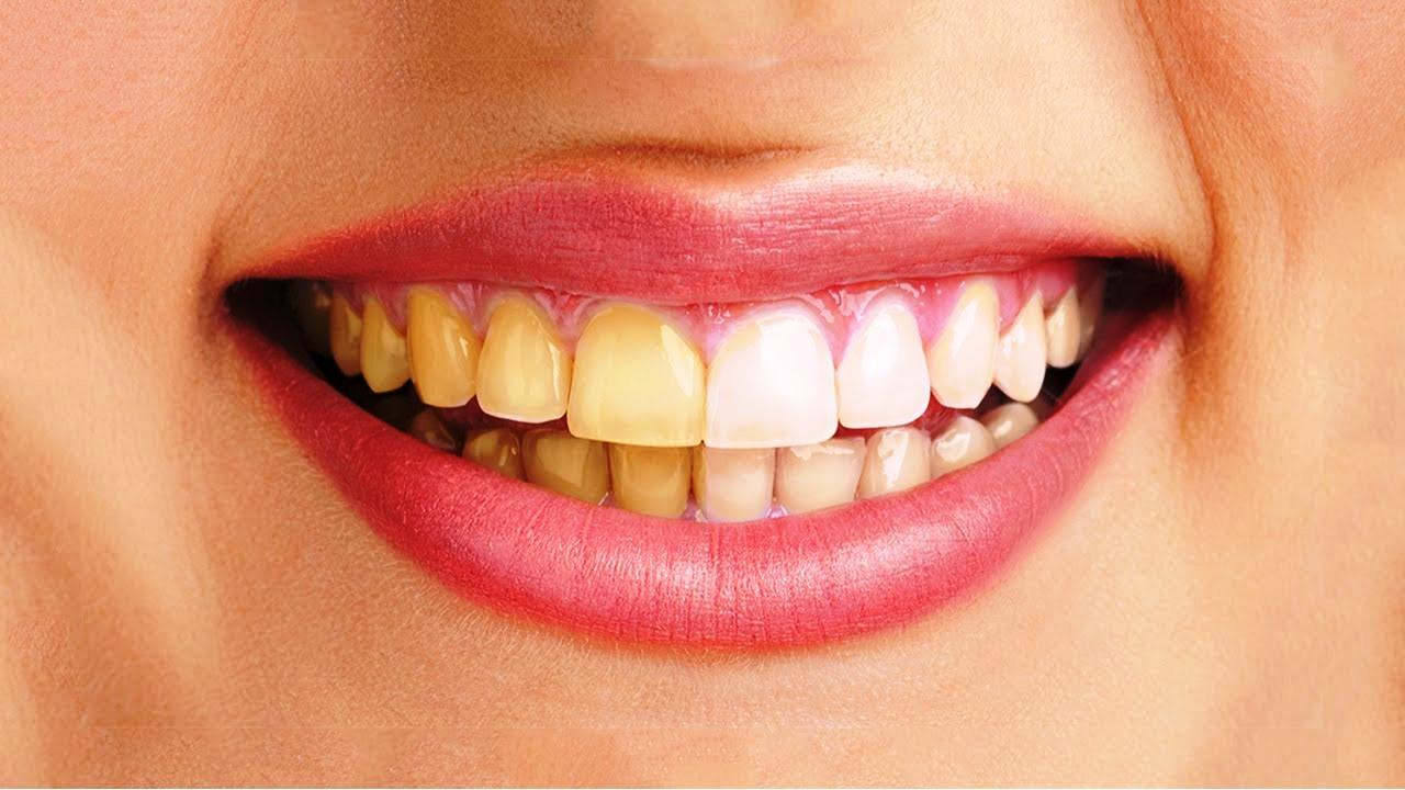 Răng Bị Ố Vàng Có Nên Bọc Răng Sứ? – Nha Khoa Quốc Tế Á Châu - ảnh 1