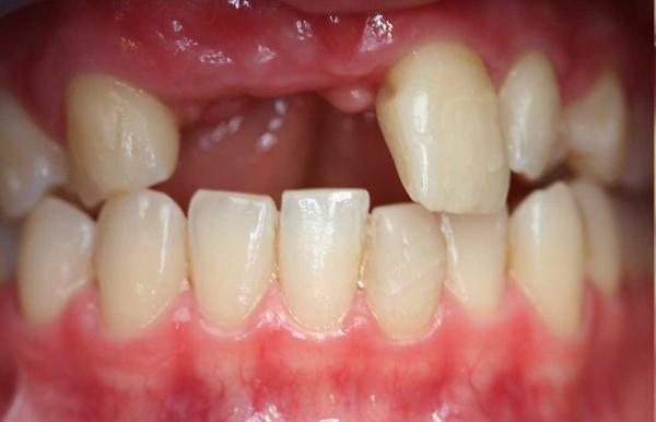 Mất Răng Cửa Và Những Phương Pháp Khắc Phục Hoàn Hảo - ảnh 1