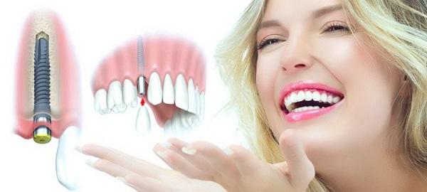 Bị Mất Răng Nên Làm Cầu Răng Sứ Hay Cấy Ghép Implant - ảnh 9