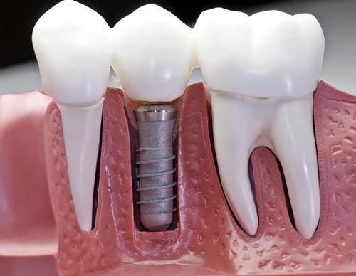 Bị Mất Răng Nên Làm Cầu Răng Sứ Hay Cấy Ghép Implant - ảnh 7