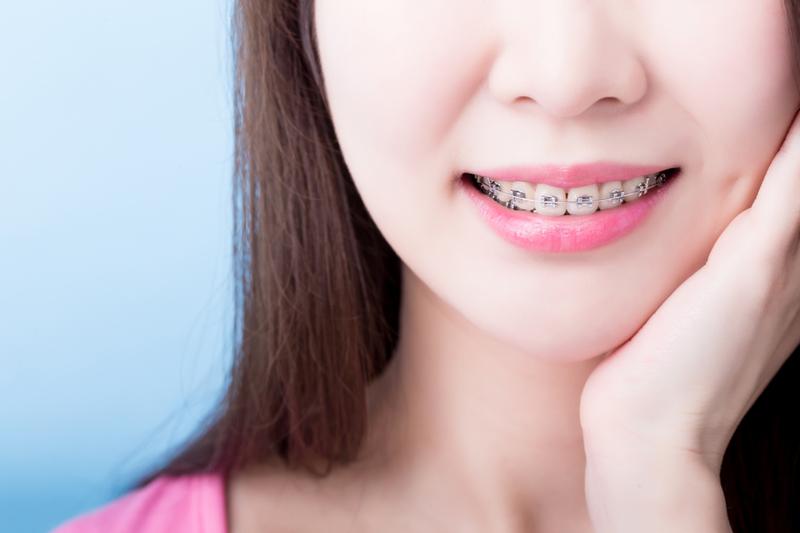 Gắn Mắc Cài Niềng Răng Có Đau Không? – Nha Khoa Quốc Tế Á Châu - ảnh 3