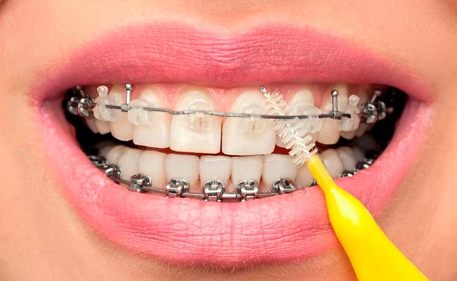 Gắn Mắc Cài Niềng Răng Có Đau Không? – Nha Khoa Quốc Tế Á Châu - ảnh 7