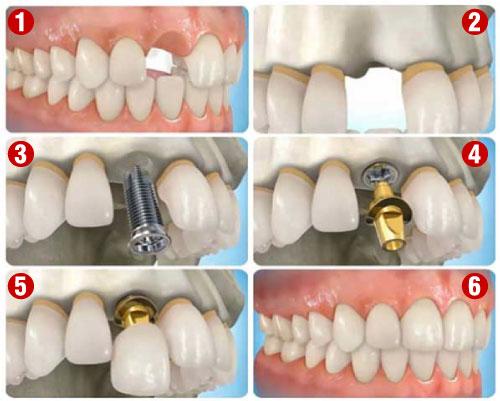 Quy Trình Cấy Ghép Implant Như Thế Nào? Nha Khoa Quốc Tế Á Châu - ảnh 3