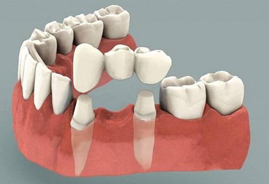 Bị Mất Răng Nên Làm Cầu Răng Sứ Hay Cấy Ghép Implant - ảnh 2