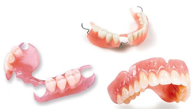 Top 3 Cách Trồng Răng Giả Tốt Nhất Hiện Nay – Nha Khoa Quốc Tế Á Châu - ảnh 2