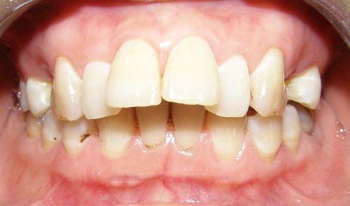 Phương Pháp Chữa Răng Cửa To Và Hô Nhanh Nhất – Nha Khoa Quốc Tế Á Châu - ảnh 2