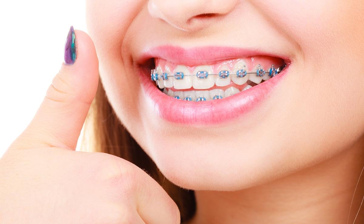 Cảm Giác Trong Quá Trình Niềng Răng Như Thế Nào? – Nha Khoa Quốc Tế Á Châu - ảnh 2