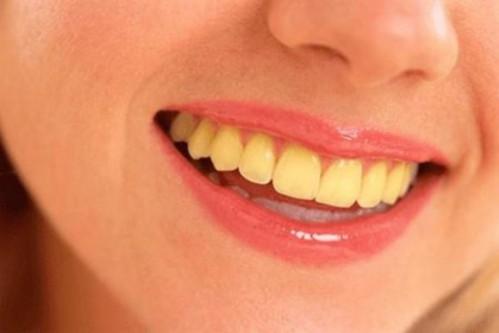 Răng Bị Ố Vàng Có Nên Bọc Răng Sứ? – Nha Khoa Quốc Tế Á Châu - ảnh 2