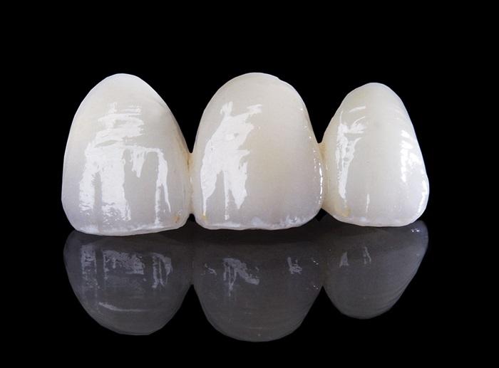 Răng Toàn Sứ Giá Bao Nhiêu? Răng Toàn Sứ Có Tốt Không? Các Loại Răng Toàn Sứ Phổ Biến - ảnh 2