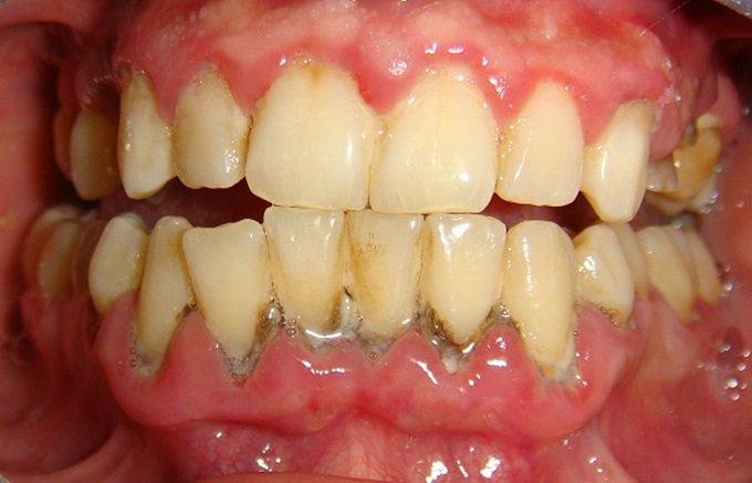 Quy Trình Các Bước Lấy Cao Răng Từ A đến Z – Nha Khoa Quốc Tế Á Châu - ảnh 2