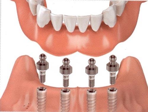 Cấy Ghép Implant Có Đau Không? Nha Khoa Quốc Tế Á Châu - ảnh 1