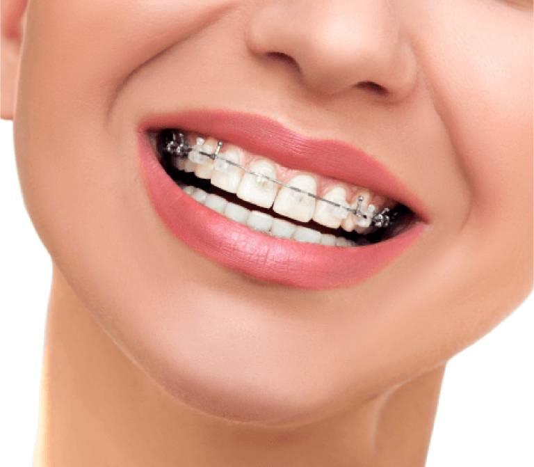 Gắn Mắc Cài Niềng Răng Có Đau Không? – Nha Khoa Quốc Tế Á Châu - ảnh 4
