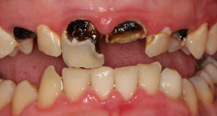 Mất Răng Cửa Và Những Phương Pháp Khắc Phục Hoàn Hảo - ảnh 7