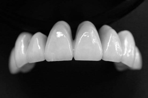 Răng Toàn Sứ Giá Bao Nhiêu? Răng Toàn Sứ Có Tốt Không? Các Loại Răng Toàn Sứ Phổ Biến - ảnh 3