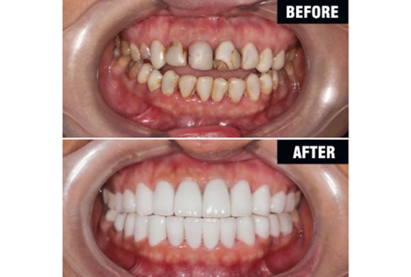 Bọc Răng Sứ Có Được Vĩnh Viễn Không? Nha Khoa Quốc Tế Á Châu - ảnh 3