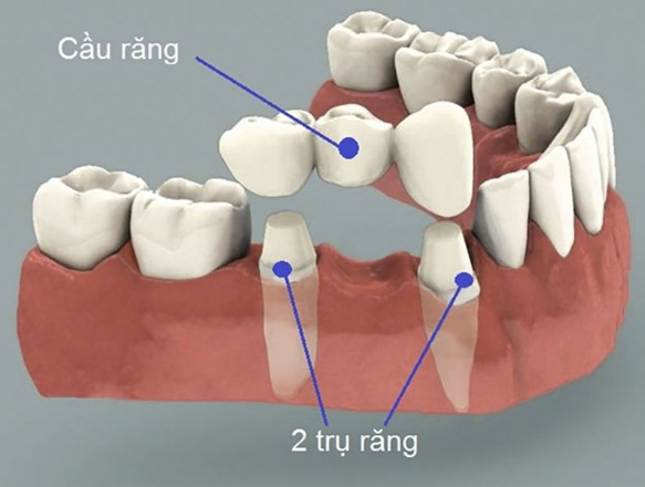 Bị Mất Răng Nên Làm Cầu Răng Sứ Hay Cấy Ghép Implant - ảnh 3