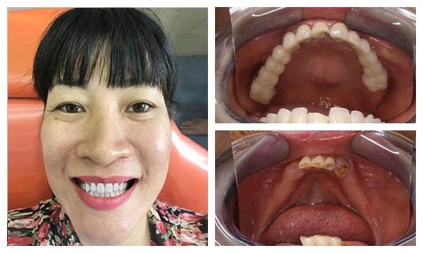 Trồng Implant Có Sử Dụng Được Vĩnh Viễn Không? Nha Khoa Quốc Tế Á Châu - ảnh 3