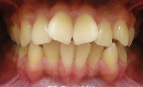 Phương Pháp Chữa Răng Cửa To Và Hô Nhanh Nhất – Nha Khoa Quốc Tế Á Châu - ảnh 3