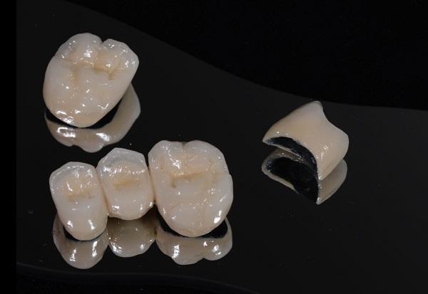 Răng Sứ Bị Vỡ Có Được Bảo Hành Không? – Nha Khoa Quốc Tế Á Châu - ảnh 3
