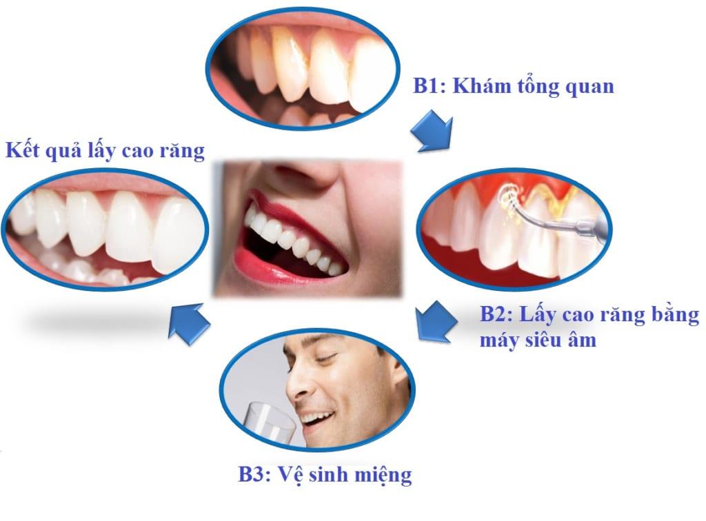 Quy Trình Các Bước Lấy Cao Răng Từ A đến Z – Nha Khoa Quốc Tế Á Châu - ảnh 3