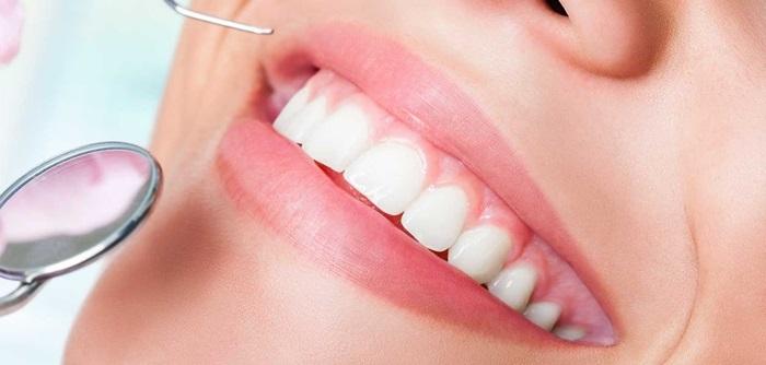 Răng Bị Ố Vàng Có Nên Bọc Răng Sứ? – Nha Khoa Quốc Tế Á Châu - ảnh 11