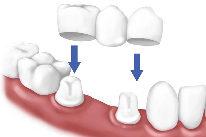 Mất Răng Cửa Và Những Phương Pháp Khắc Phục Hoàn Hảo - ảnh 13