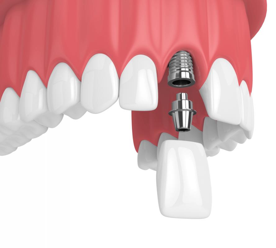 Mất Răng Cửa Và Những Phương Pháp Khắc Phục Hoàn Hảo - ảnh 15