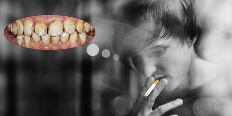 Răng Bị Ố Vàng Có Nên Bọc Răng Sứ? – Nha Khoa Quốc Tế Á Châu - ảnh 4