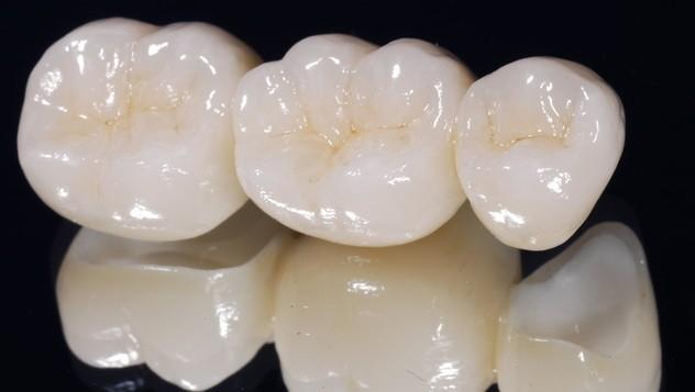 Răng Sứ Bị Vỡ Có Được Bảo Hành Không? – Nha Khoa Quốc Tế Á Châu - ảnh 4
